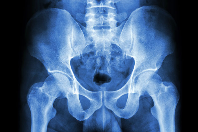 Pelvic Injury Disability Claim | Share Lawyers